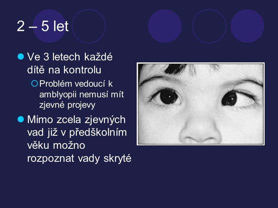 2 – 5 let Ve 3 letech každé dítě na kontrolu
