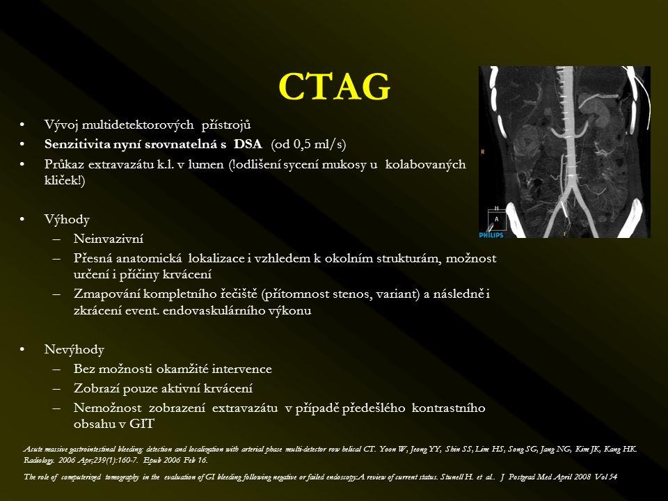 CTAG Vývoj multidetektorových přístrojů