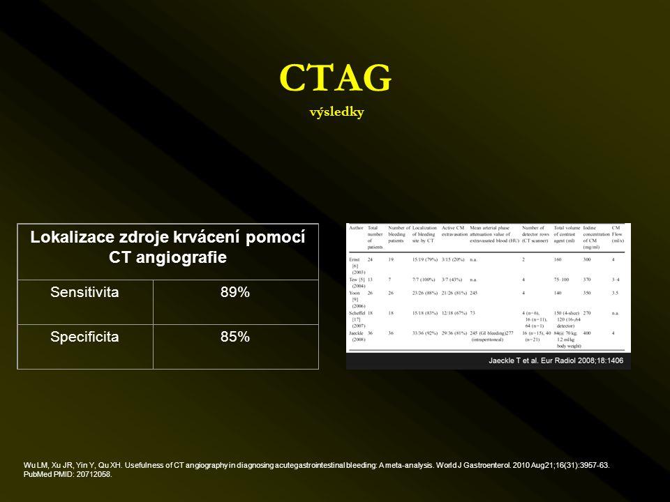 Lokalizace zdroje krvácení pomocí CT angiografie