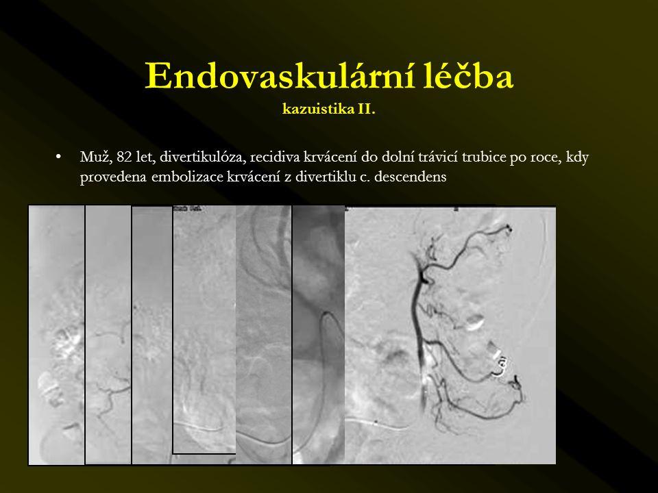 Endovaskulární léčba kazuistika II.