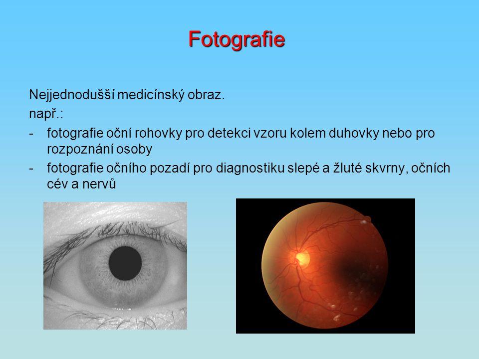 Fotografie Nejjednodušší medicínský obraz. např.: