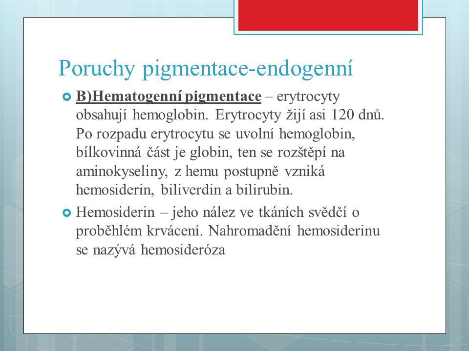Poruchy pigmentace-endogenní