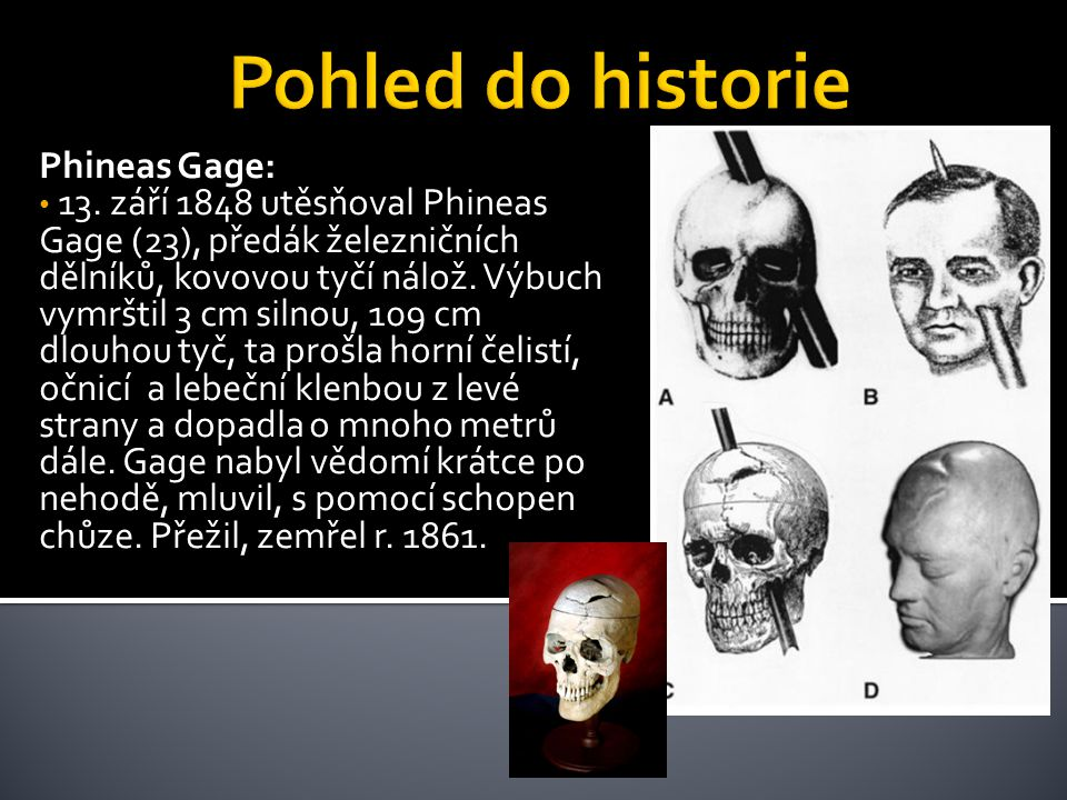 Pohled do historie Phineas Gage: