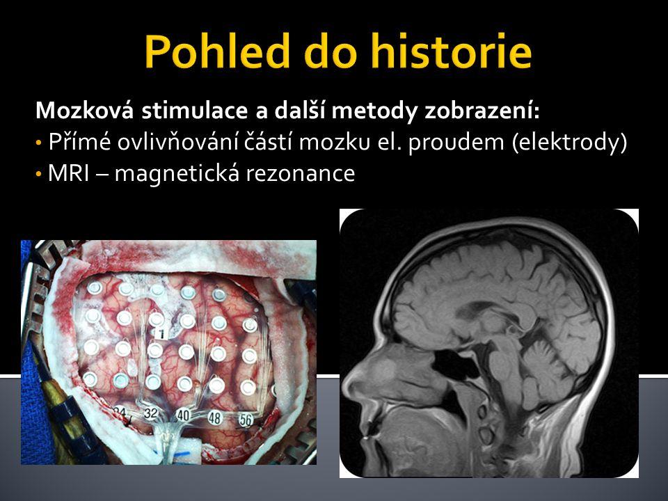 Pohled do historie Mozková stimulace a další metody zobrazení: