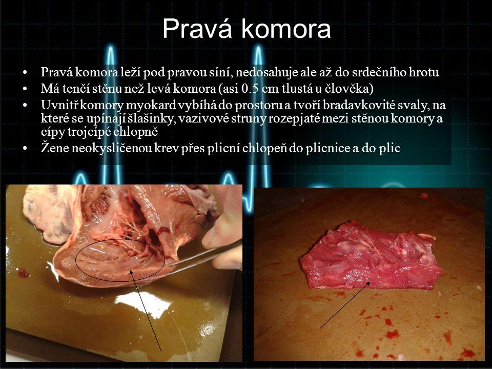 Pravá komora Pravá komora leží pod pravou síní, nedosahuje ale až do srdečního hrotu. Má tenčí stěnu než levá komora (asi 0.5 cm tlustá u člověka)