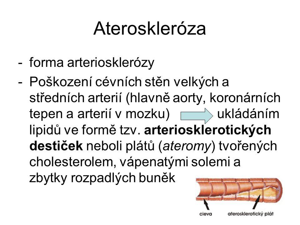 Ateroskleróza forma arteriosklerózy