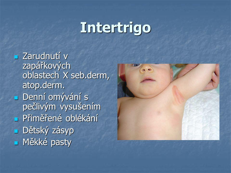 Intertrigo Zarudnutí v zapářkových oblastech X seb.derm, atop.derm.