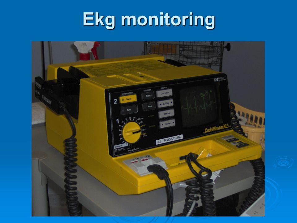 Ekg monitoring