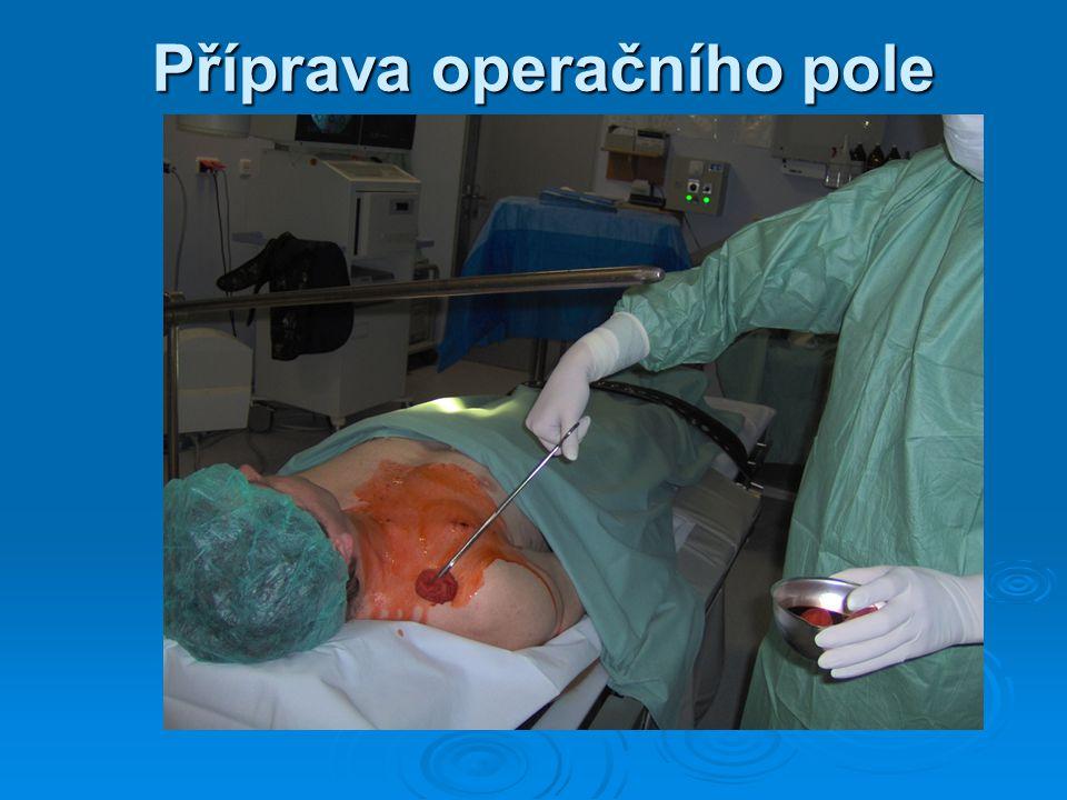Příprava operačního pole