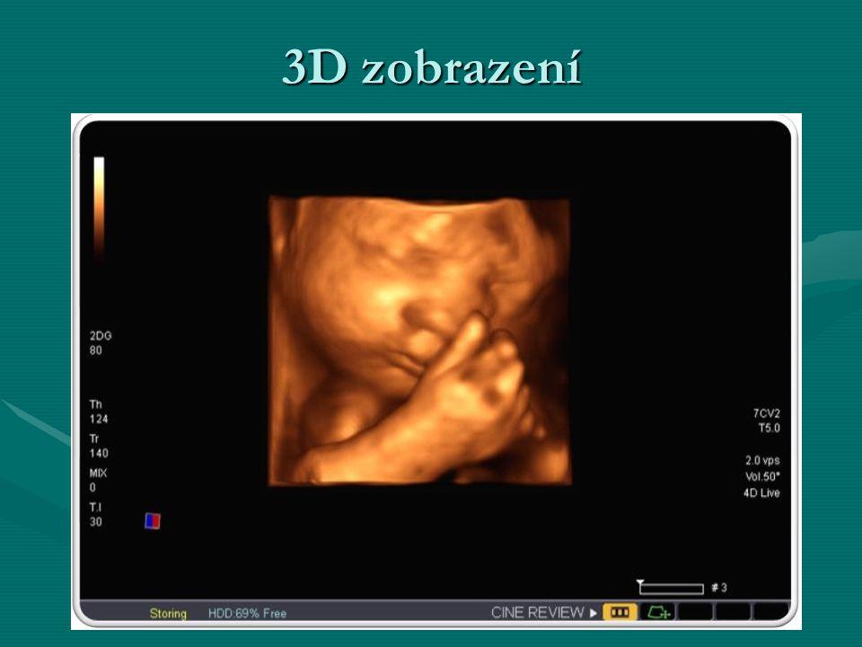 3D zobrazení
