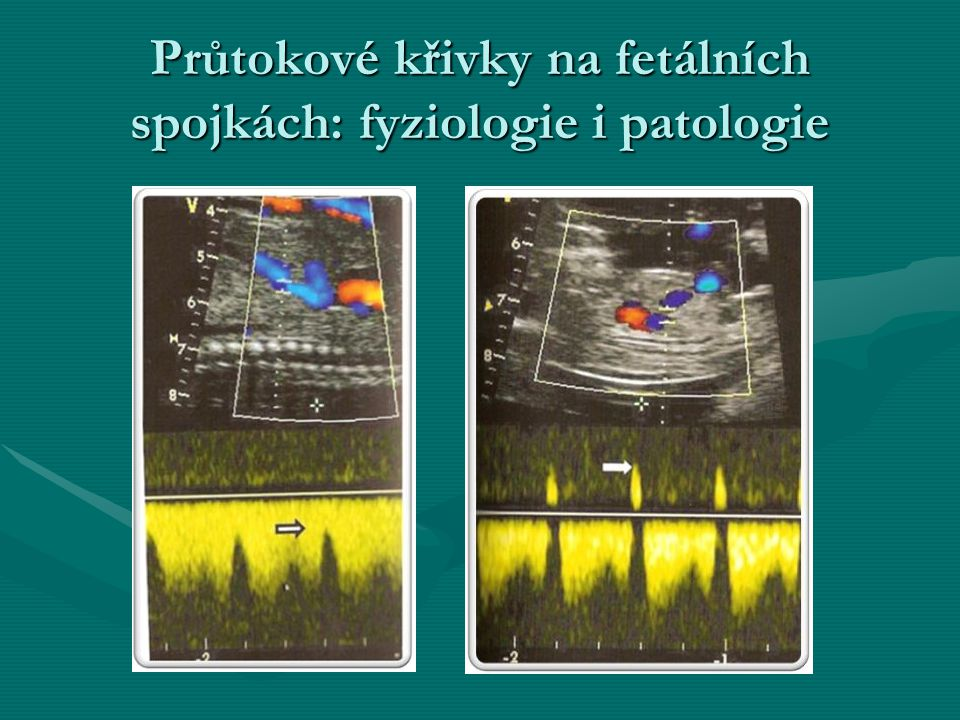 Průtokové křivky na fetálních spojkách: fyziologie i patologie