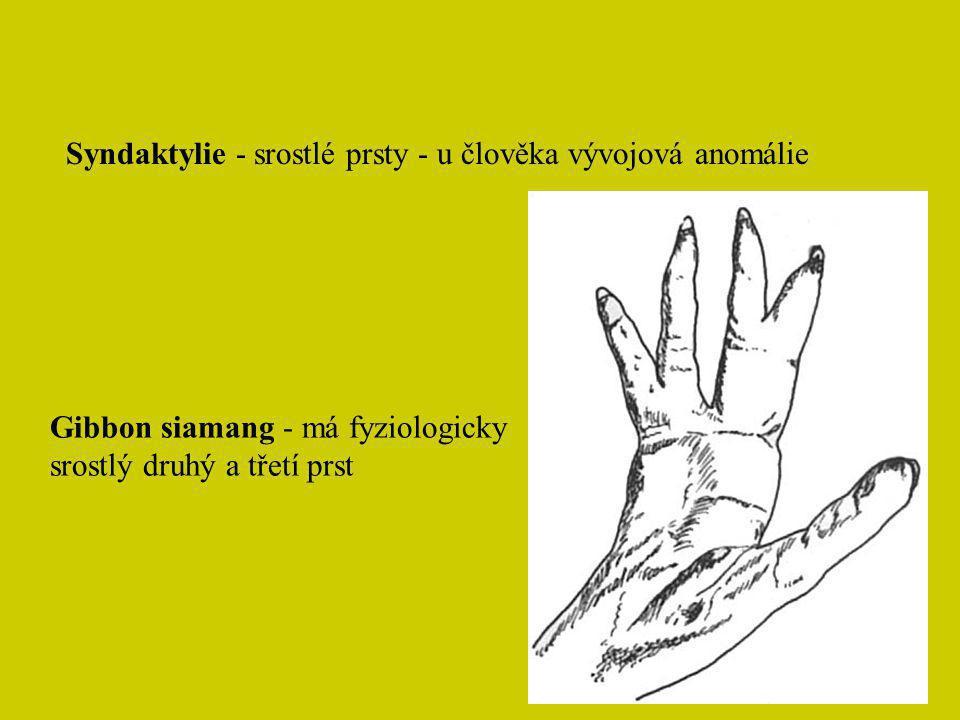 Syndaktylie - srostlé prsty - u člověka vývojová anomálie