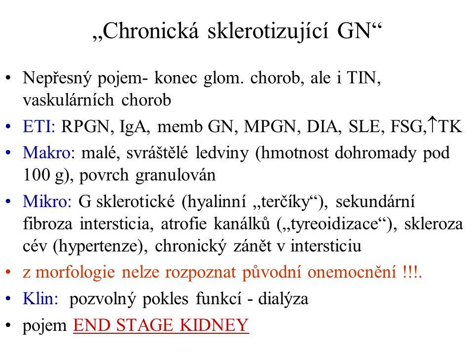"""""""Chronická sklerotizující GN"""