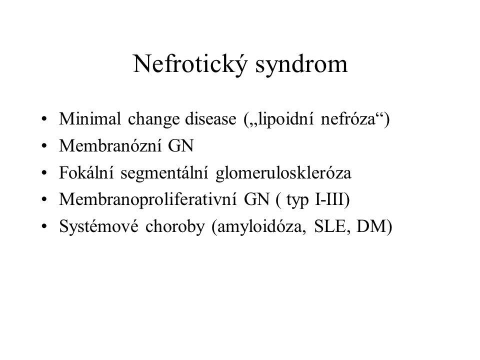 """Nefrotický syndrom Minimal change disease (""""lipoidní nefróza )"""