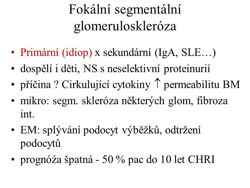 Fokální segmentální glomeruloskleróza