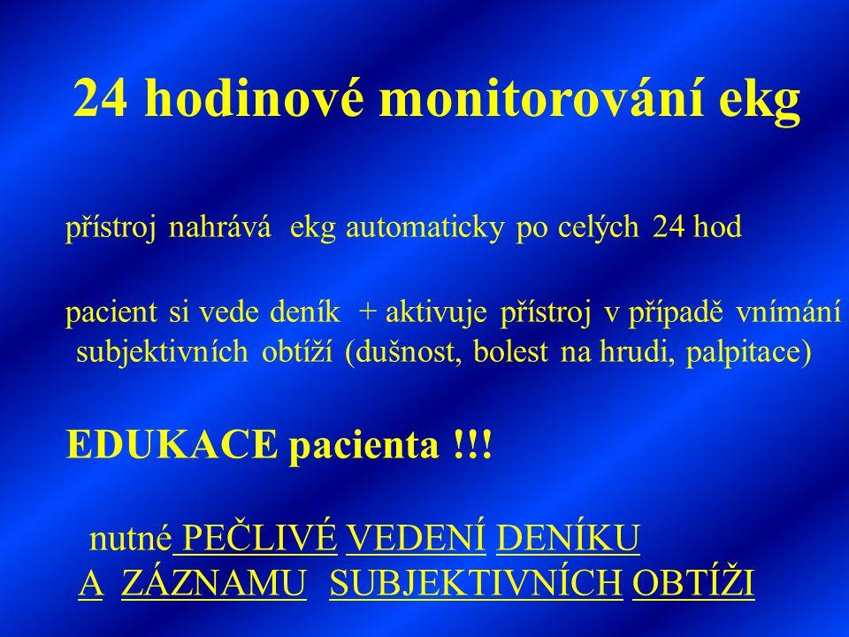 24 hodinové monitorování ekg