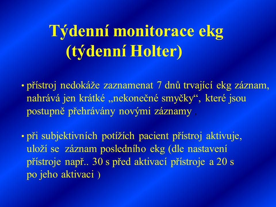 Týdenní monitorace ekg (týdenní Holter)