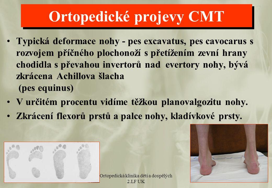 Ortopedické projevy CMT