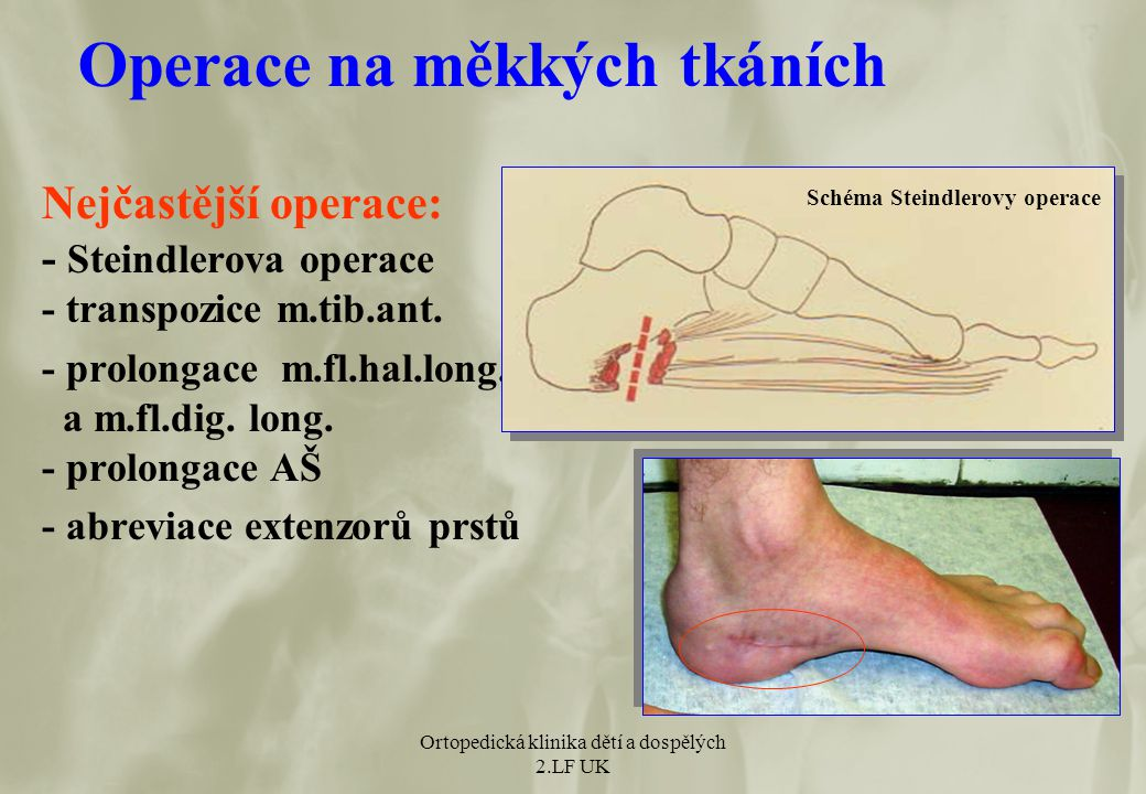 Operace na měkkých tkáních