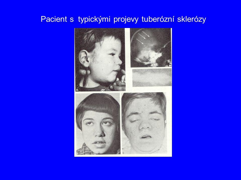 Pacient s typickými projevy tuberózní sklerózy