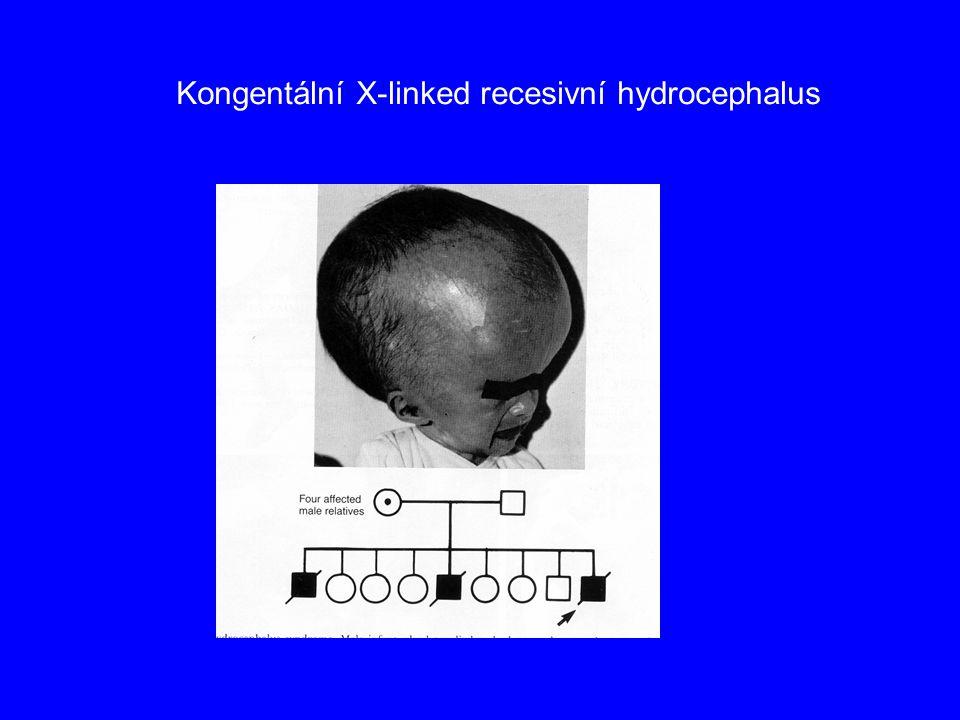 Kongentální X-linked recesivní hydrocephalus