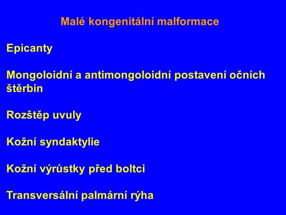 Mongoloidní a antimongoloidní postavení očních štěrbin Rozštěp uvuly
