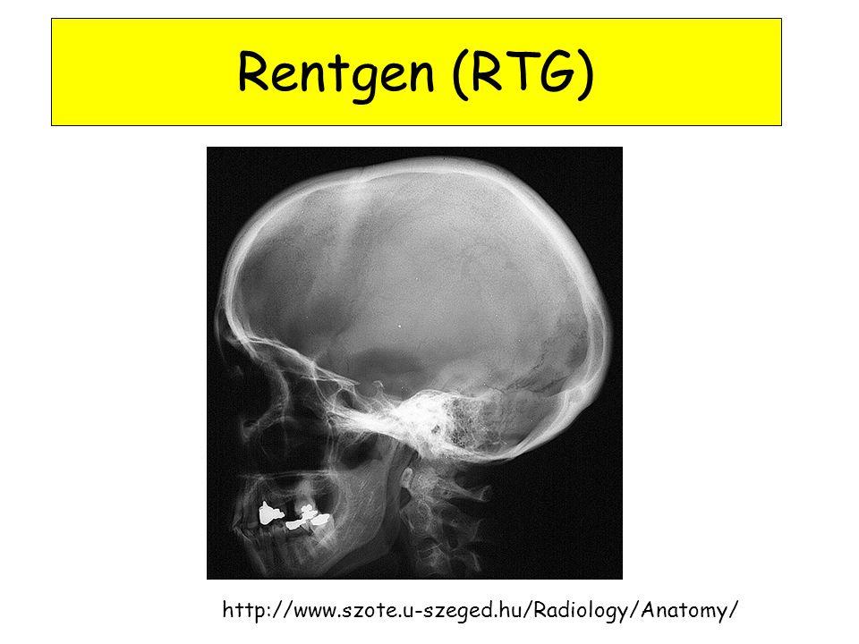 Rentgen (RTG) http://www.szote.u-szeged.hu/Radiology/Anatomy/