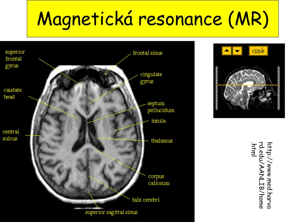 Magnetická resonance (MR)