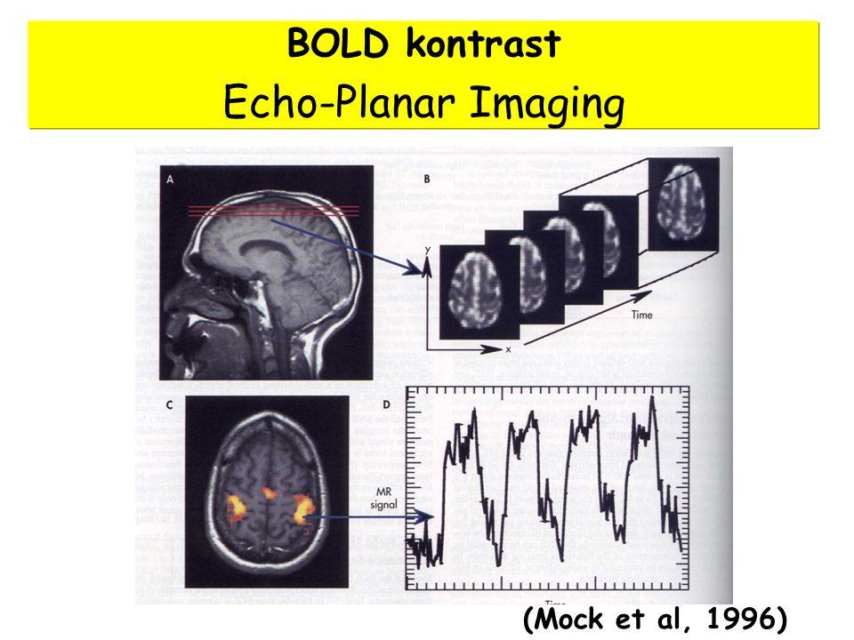 BOLD kontrast Echo-Planar Imaging