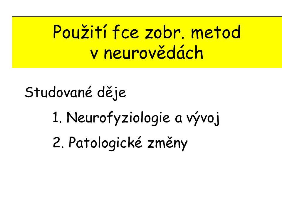 Použití fce zobr. metod v neurovědách