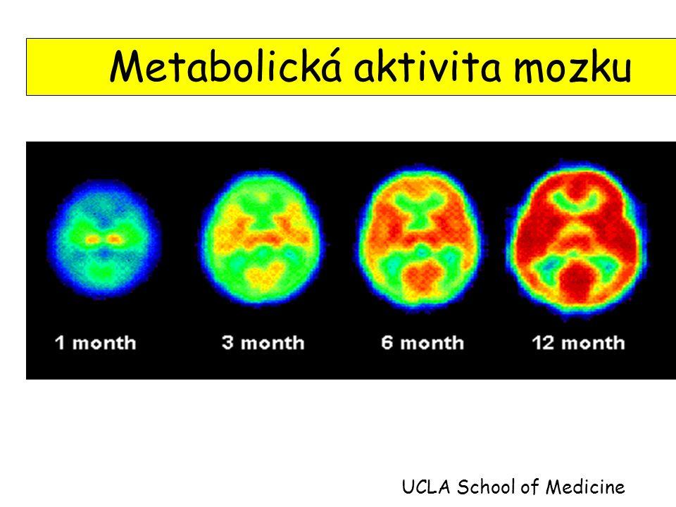 Metabolická aktivita mozku