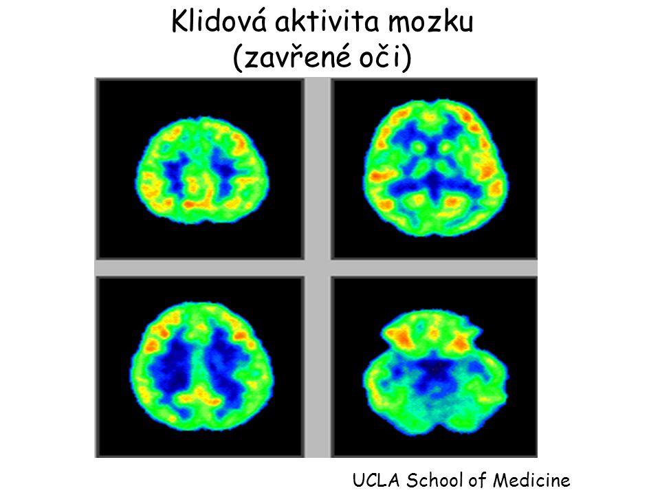 Klidová aktivita mozku