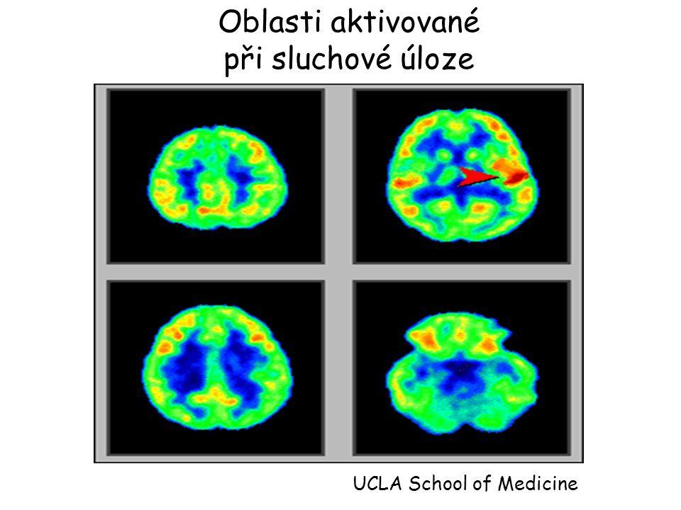 Oblasti aktivované při sluchové úloze UCLA School of Medicine