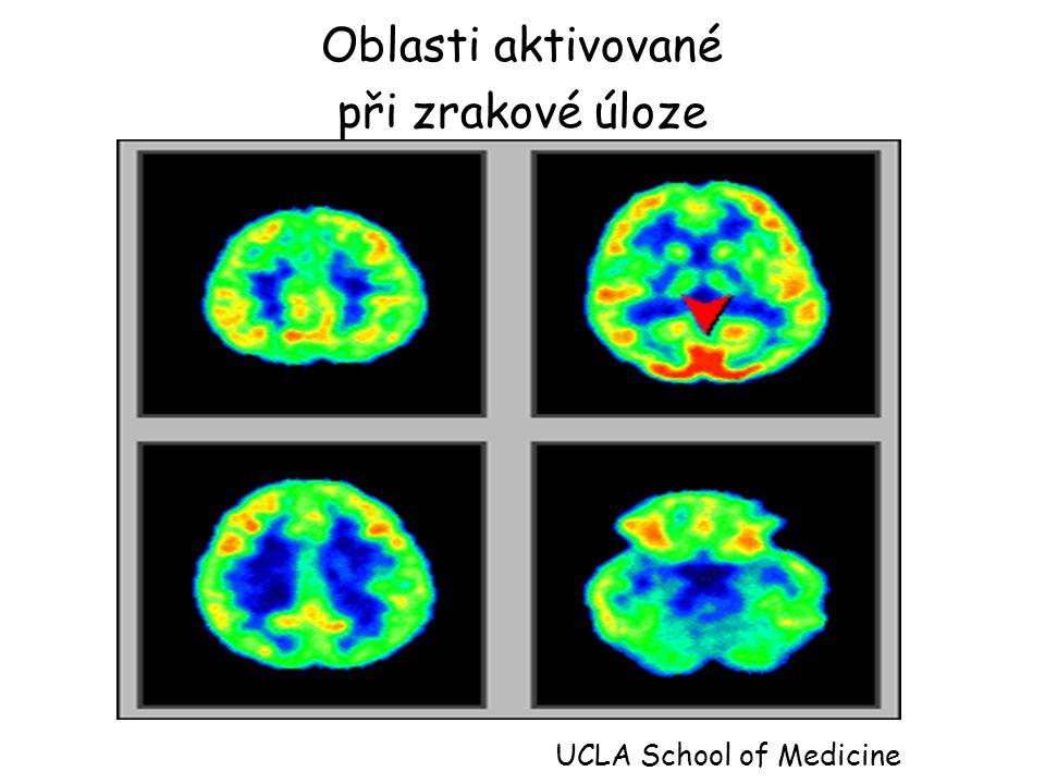 Oblasti aktivované při zrakové úloze UCLA School of Medicine