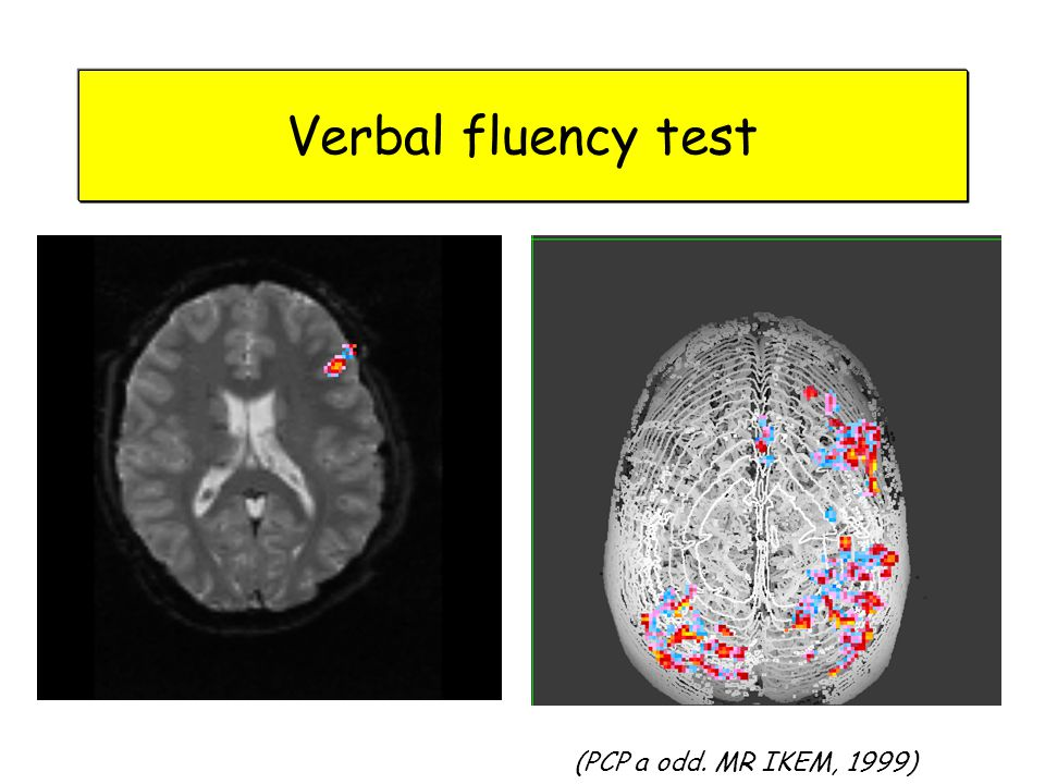 Verbal fluency test (PCP a odd. MR IKEM, 1999)