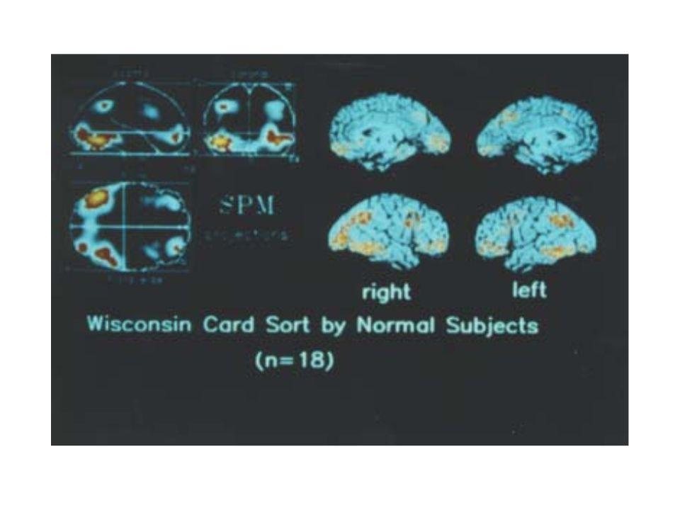 Oblasti aktivované při provádění Wiskonsisntého testu třídění karet.
