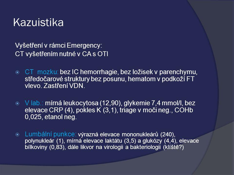 Kazuistika Vyšetření v rámci Emergency: CT vyšetřením nutné v CA s OTI