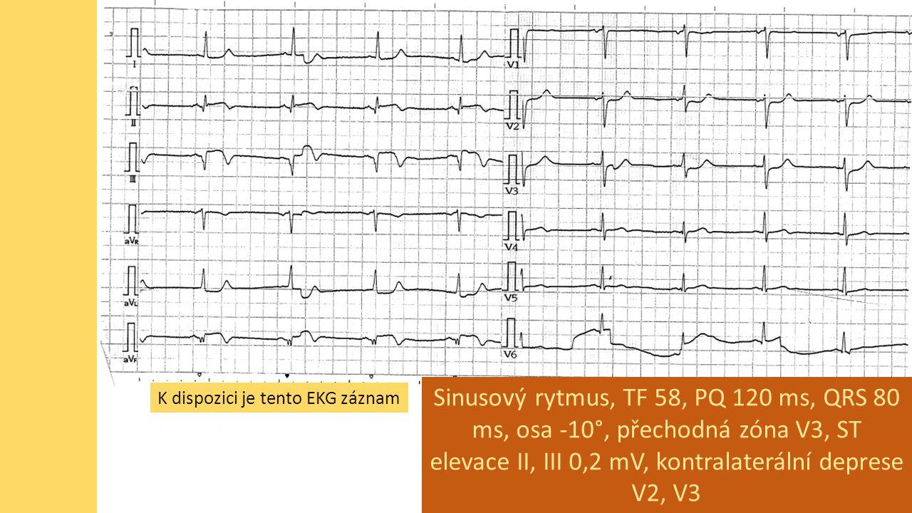 Sinusový rytmus, TF 58, PQ 120 ms, QRS 80 ms, osa -10°, přechodná zóna V3, ST elevace II, III 0,2 mV, kontralaterální deprese V2, V3
