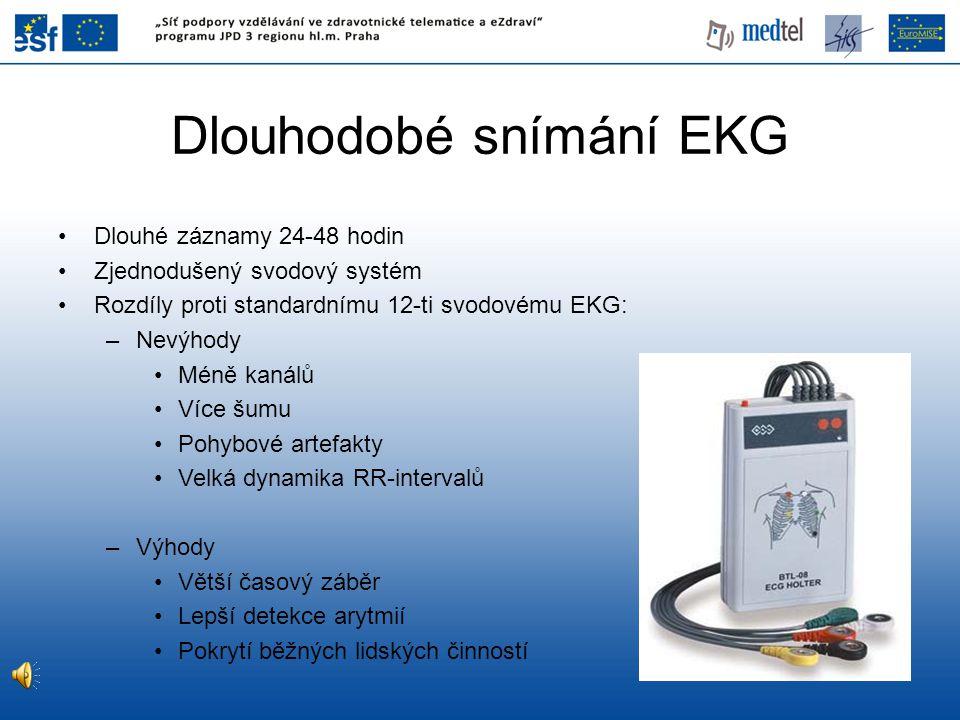 Dlouhodobé snímání EKG