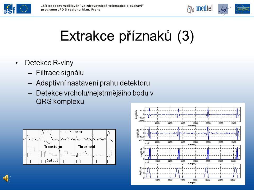 Extrakce příznaků (3) Detekce R-vlny Filtrace signálu
