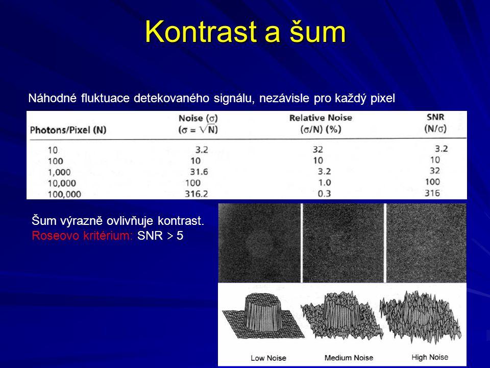Kontrast a šum Náhodné fluktuace detekovaného signálu, nezávisle pro každý pixel. Šum výrazně ovlivňuje kontrast.