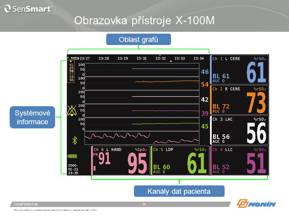Funkce obrazovky s daty pacienta rSO2