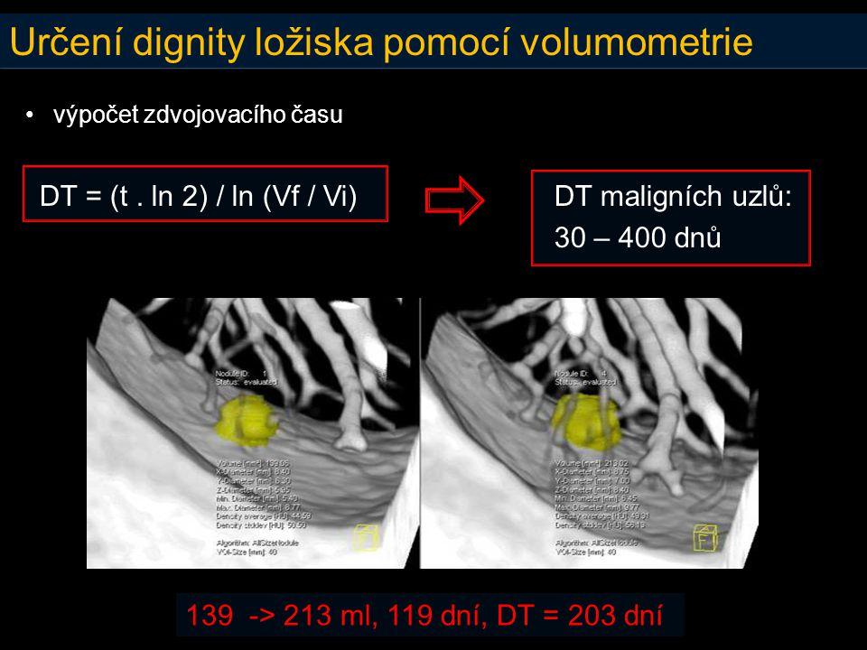 Určení dignity ložiska pomocí volumometrie