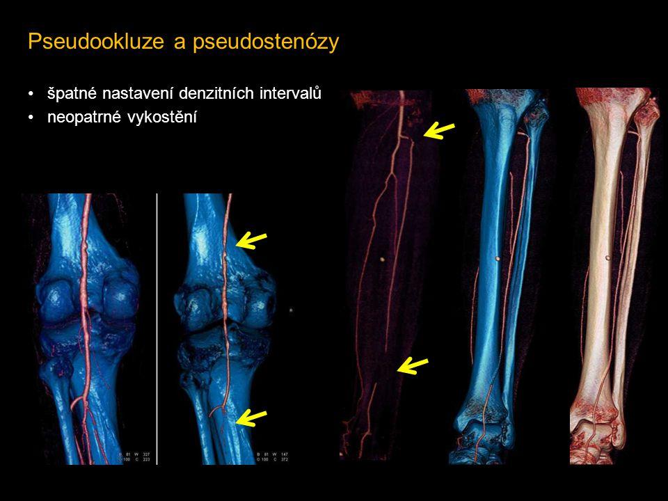 Pseudookluze a pseudostenózy
