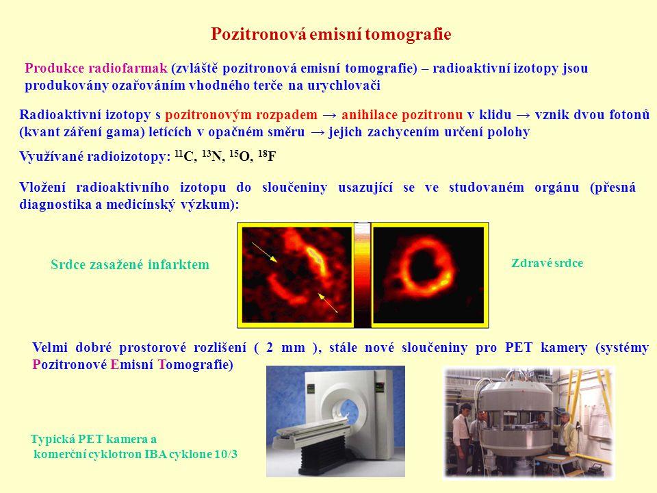 Pozitronová emisní tomografie
