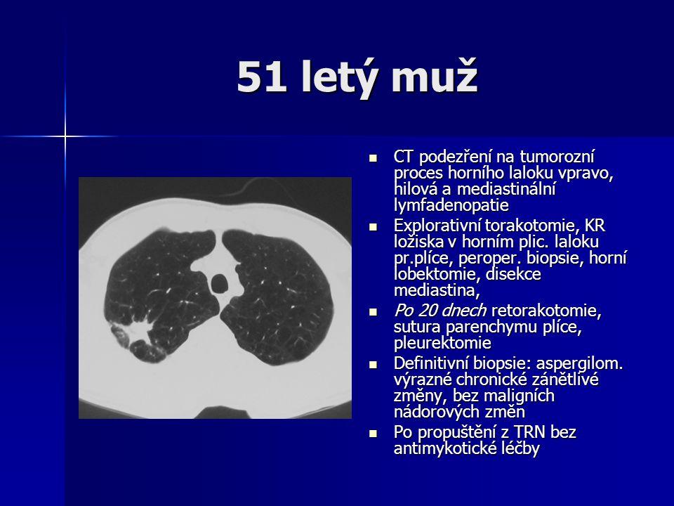 51 letý muž CT podezření na tumorozní proces horního laloku vpravo, hilová a mediastinální lymfadenopatie.