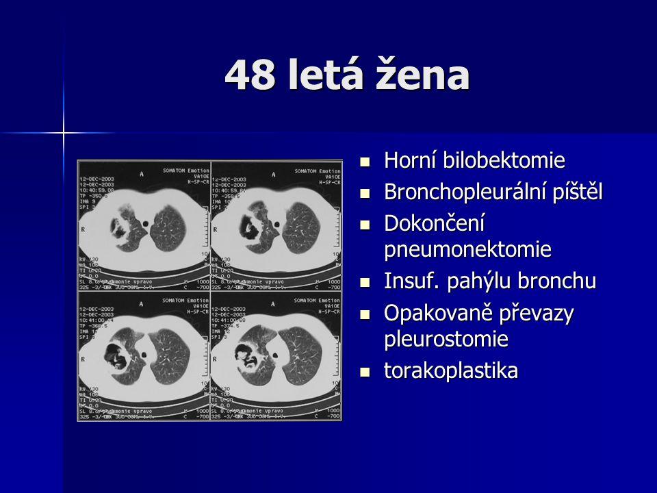 48 letá žena Horní bilobektomie Bronchopleurální píštěl