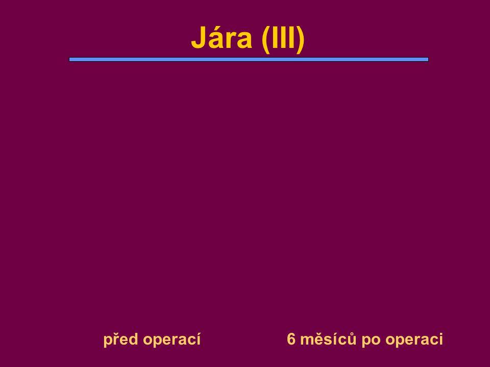 Jára (III) před operací 6 měsíců po operaci