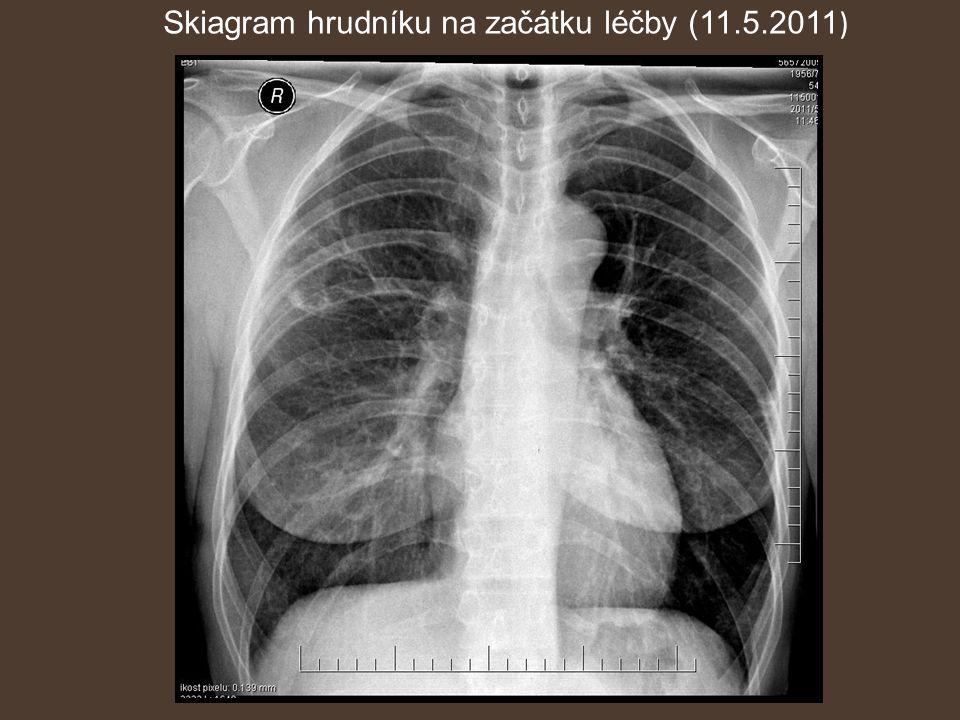 Skiagram hrudníku na začátku léčby (11.5.2011)