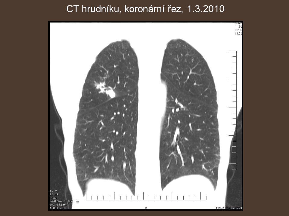 CT hrudníku, koronární řez, 1.3.2010